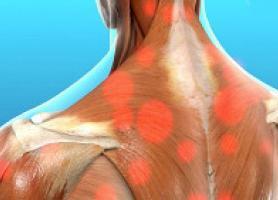 دردهای عضلانی علل ، پیشگیری و راه های درمان