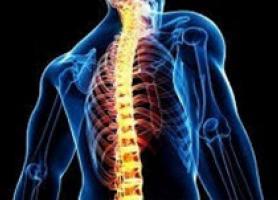 تنگی کانال نخاعی عوامل موثر ، علائم و درمان