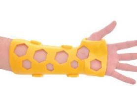 نقش پلاتین و ایمپلنت در درمان شکستگی استخوان