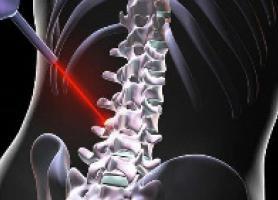 درمان دیسک کمر با لیزر درمانی و اثرات آن