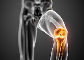 آرتروپلاستی زانو مزایا ، عوارض جانبی و مراقبت های پزشکی