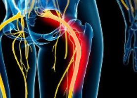 علت علائم تشخیص و درمان درد سیاتیک