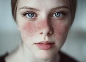 علائم علت عوارض و درمان بیماری لوپوس