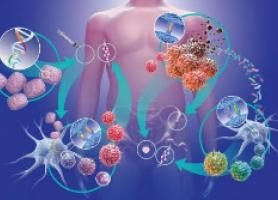 درمان سرطان سینه جراحی ،پرتو ، شیمی و هورمون درمانی