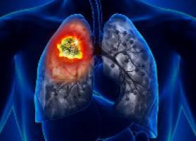 علت علائم تشخیص و راه های درمان سرطان ریه