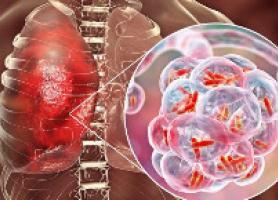 علل انواع تشخیص و درمان بیماری سل