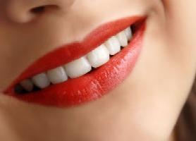 معایب کامپوزیت دندان و مقایسه آن با کامپوزیت ونیر