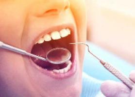 مراقبت هاي بعد از كشيدن دندان