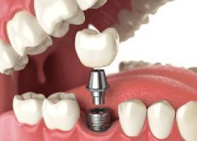 آشنایی با انواع پروتز دندان ثابت متحرک قیمت