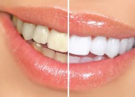 کاربرد مزایا و معایب انواع لامینت دندان