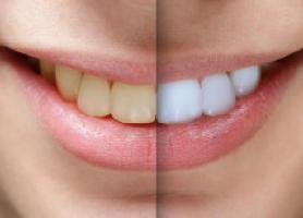 بلیچینگ دندان در مطب و در منزل و عوارض آن