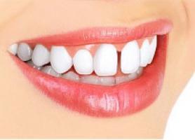 انواع روش بستن فاصله میان دندان ها و سوالات متداول