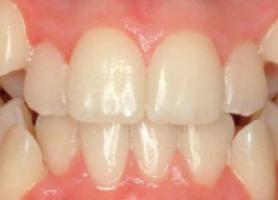 انواع کراودینگ دندان علت درمان اتوردنسی و سوالات متداول