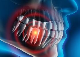 انواع علت تشخیص عوارض و درمان دندان نهفته