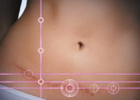 عوارض عمومی و اختصاصی جراحی زیبایی شکم