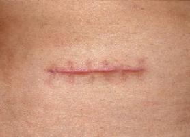 انواع بافت اسکار یا جای زخم متقاضی مناسب و درمان
