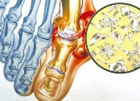 علت علائم تشخیص و درمان نقرس