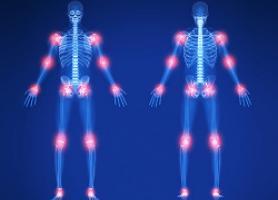انواع بیماری های مفصلی علائم تشخیص و درمان