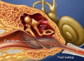 بیماری منییر گوش علائم تشخیص و درمان