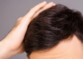 اثرات منفی شغل بر مو و نکات مهم ریزش مو