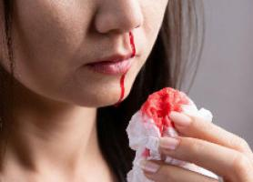 علت تشخیص درمان و جلوگیری از خون دماغ شدن