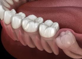 علت بروز درد دندان عقل و درمان آن