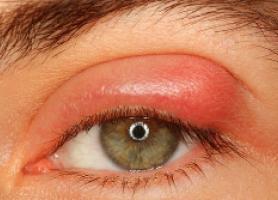 درمان های خانگی برای عفونت چشم