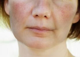 دلایل به وجود آمدن بیماری لوپوس چیست