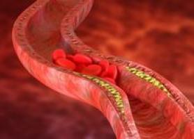علت ضخیم شدن رگ های قلب چیست