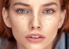 کک و مک صورت و راه های درمان