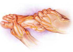 علت و علائم زخم پای دیابتی چیست؟