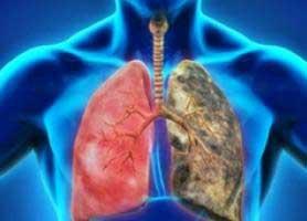 بیماری آمپیم ؛ علل، علائم و درمان آن