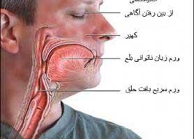 علل و علائم بیماری آنافيلاكسی ( شوک آلرژیک )