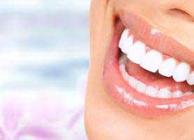 لمینت دندان چیست؟ انواع لمینت دندان ، مزایا و معایب آن