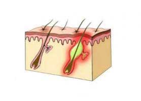 فولیکولیت ؛ التهاب یا عفونت فولیکول مو چیست؟