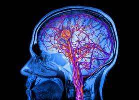 تفاوت آنوریسم مغزی و سکته مغزی چیست؟