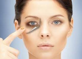 درمان سریع تیرگی دور چشم