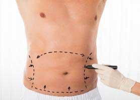 ابدومینوپلاستی یا جراحی زیبایی شکم چیست؟