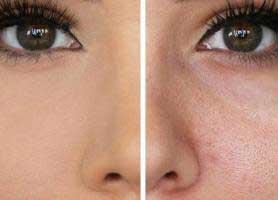 میکرونیدلینگ روشی برای درمان منافذ باز پوست