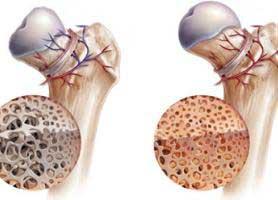 علل، علائم و درمان بیماری استئومیلیت یا عفونت استخوان