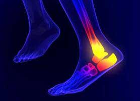 علت درد کف پا و پاشنه پا چیست؟