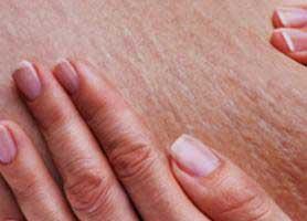 سلولیت چیست؟ روش ها و راه های درمان آن کدامند؟