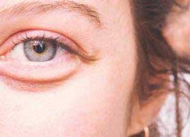 چگونه پف زیر چشم را از بین ببریم